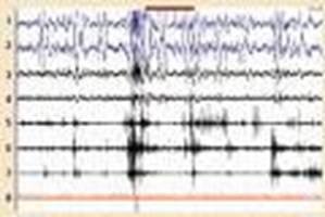 El EEG - patrón de vigilia en la fase REM