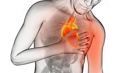 Frío y Ataque Cardiaco