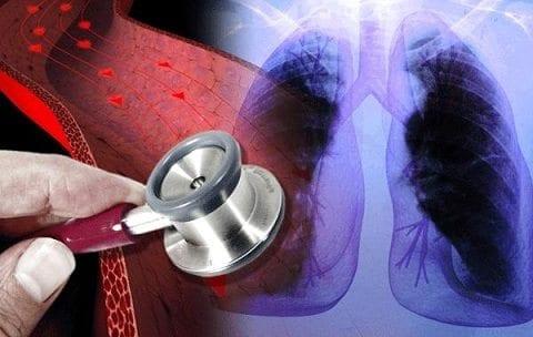 Medicamentos Cardiacos son seguros para los Pulmones