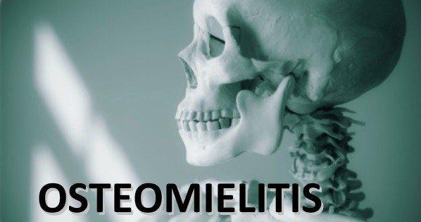 Cultivos en Osteomielitis