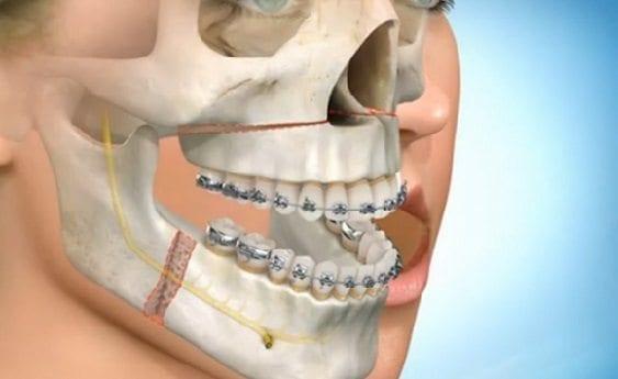 Medicamento para la Osteoporosis podría tratar la Pérdida Ósea en la Mandíbula