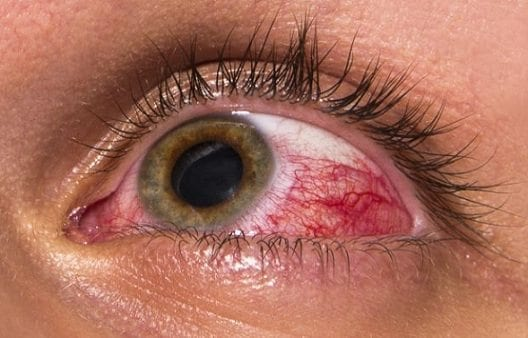 Aliviar la Presión Ocular Podría Retrasar el Glaucoma