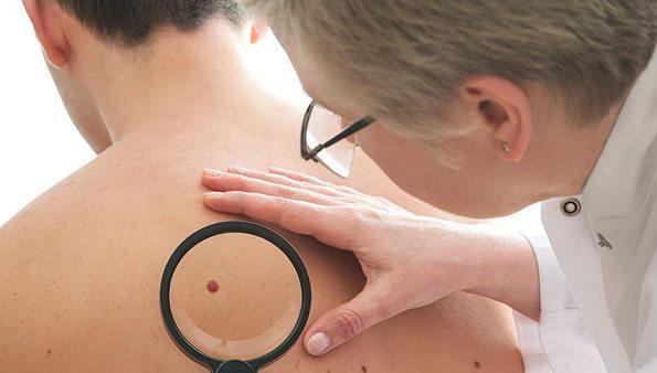 papiloma cancer de piel)