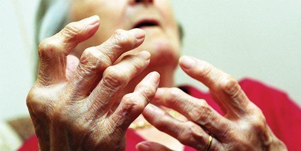 Variaciones Genéticas Osteoartritis Grave