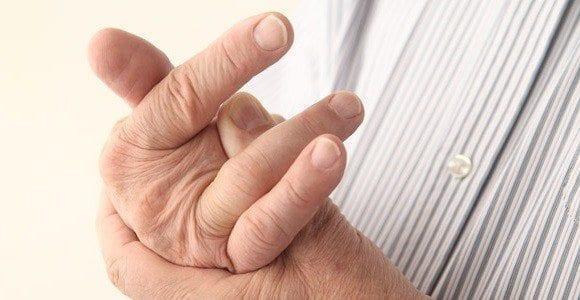 Artritis Reactivas