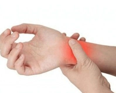 Artritis Reumatoide - Sales de oro