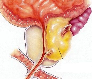 estudio de cáncer de próstata promisorio
