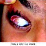 Coristoma ocular