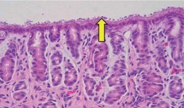 Criptosporidiosis en Niños con Cáncer