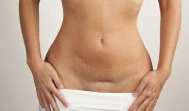 Endometriosis Riesgo de Tres Cánceres de Ovario