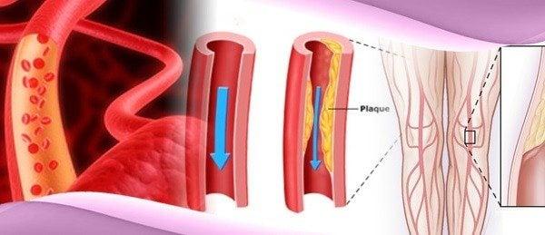 Enfermedad Arterial Periférica
