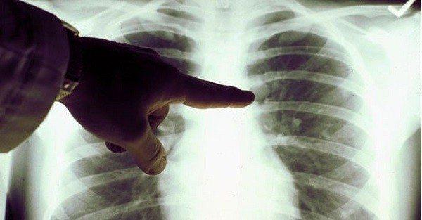 Enfermedad Pulmonar puede ser Genética