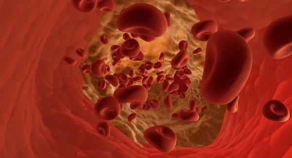 Hemoglobina Glicosilada