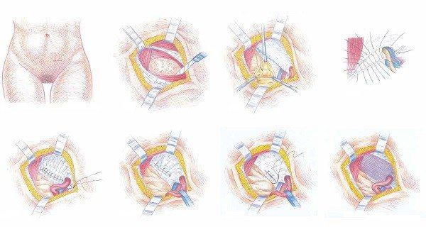 Hernioplastia Pre-Peritoneal con Malla