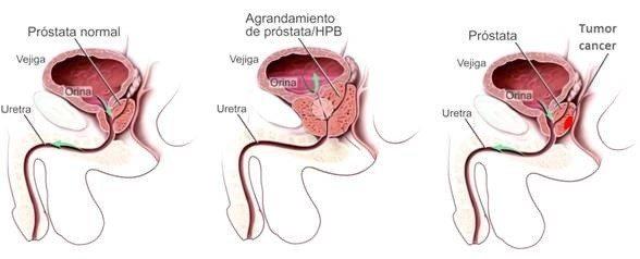 medicamentos para prostata benigna