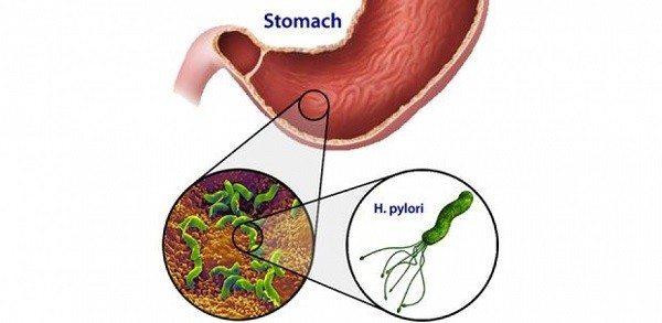 Infección por Helicobacter Pyloti