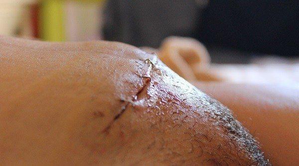 Infección de Herida Quirúrgica