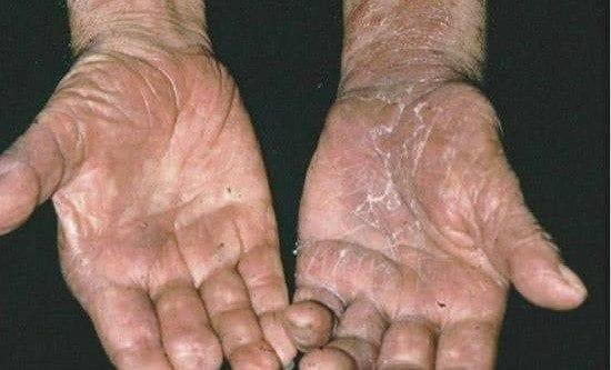 La Lepra no Cede