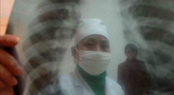 Mal Control de la Tuberculosis