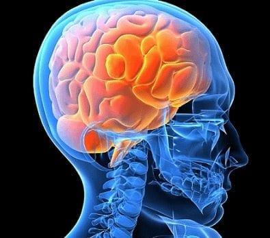 Neuroepidemiología