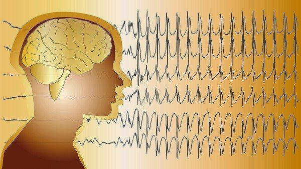 Neurólogo y Electroencefalografista