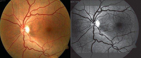 Neuropatía Óptica Epidémica