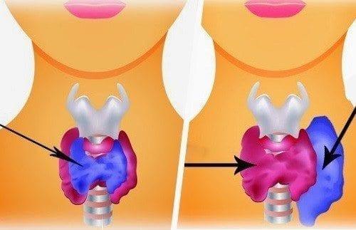 Origen del Hipotiroidismo