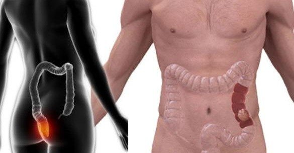 Detectar Perforación Intestinal