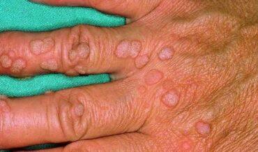 Piel e Inmunodeficiencias
