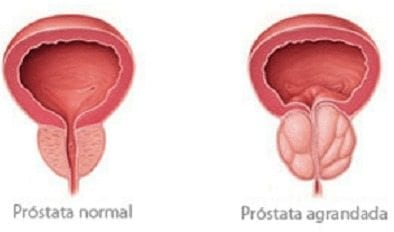 próstata agrandada y café embarazada