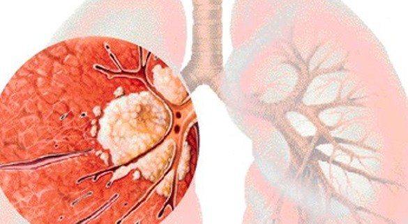 Pulmones Envejecidos