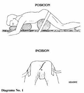 Técnicas posición e insición