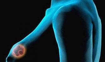 Terapia de Estrógenos