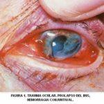 Trauma ocular prolapso del iris