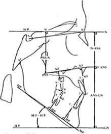 Perfilograma - COGS. Medidas Verticales, esquelético-dentales