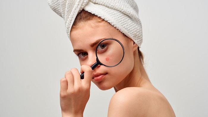 Características del acné