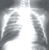 Dificultad respiratoria