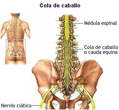 como desinflamar los nervios de la cadera