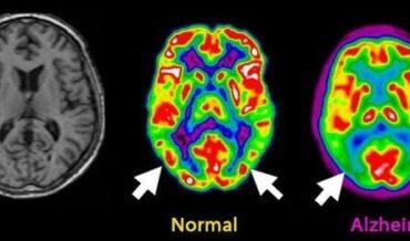 Enfermedad de Alzheimer Diagnóstico