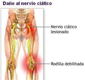 Dolor en el gluteo que irradia ala pierna