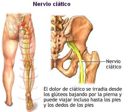 Pantorrilla la bajar escaleras muscular dolor después de en