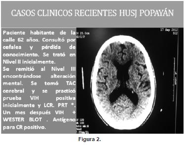 Casos clínicos de Husj