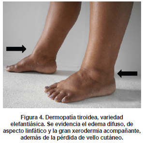Dermopatía tiroidea