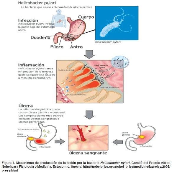 Lesión por la bacteria Helicobacter pylori