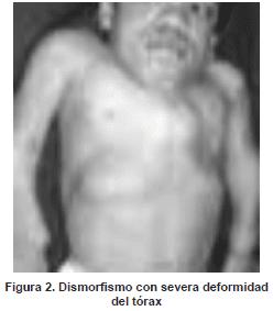 Dismorfismo con severa deformidad del tórax