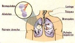 Bronquitis - afecta sistema respiratorio