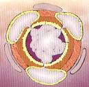 Bronquio Inflamado - Bronquitis Crónica