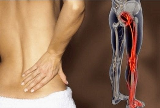 complicaciones posteriores a la próstata con molestias