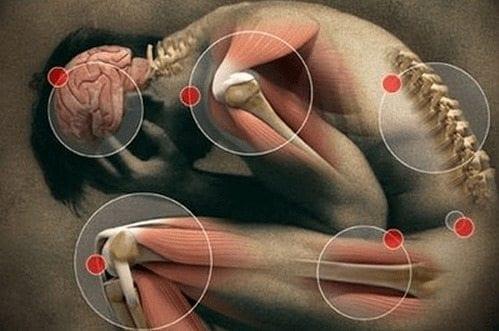 dolor articulaciones y artritis