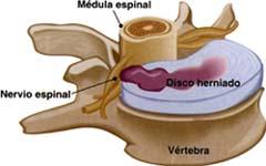 Hernia de los discos intervertebrales